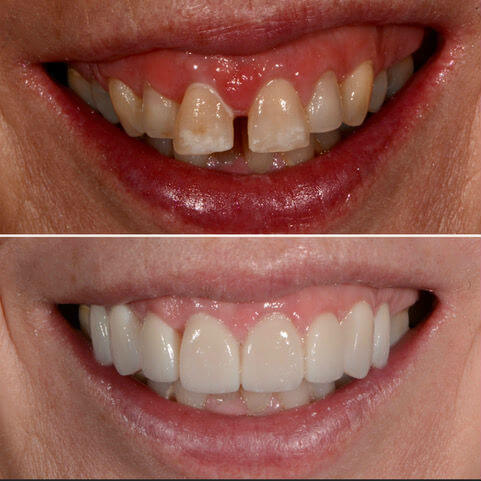 Dr Sam Jetwa's Before and After Dental treatment Case 34