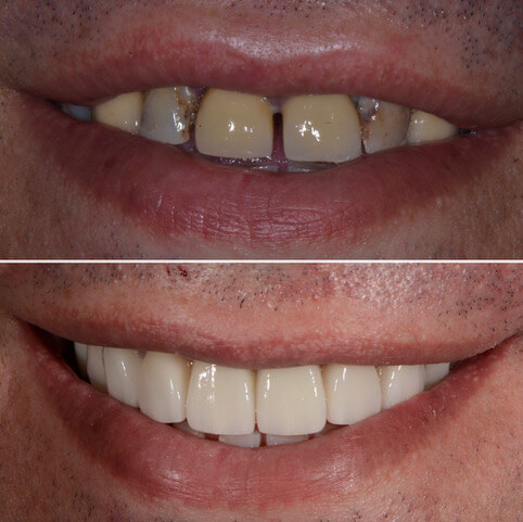 Dr Sam Jetwa's Before and After Dental treatment Case 35