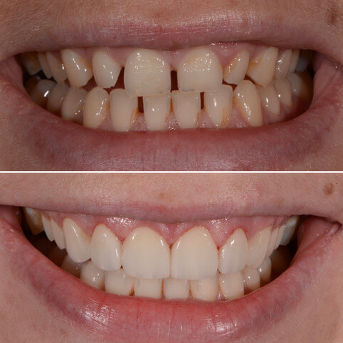 Dr Sam Jetwa's Before and After Dental treatment Case 36
