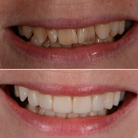 Dr Sam Jetwa's Before and After Dental treatment Case 37