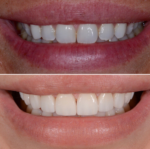 Dr Sam Jetwa's Before and After Dental treatment Case 38