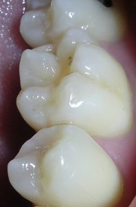 fissure-sealant-coating