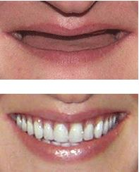 Treated at The Perfect Smile Studios on Extreme Makeover UK