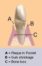 gum-illustration
