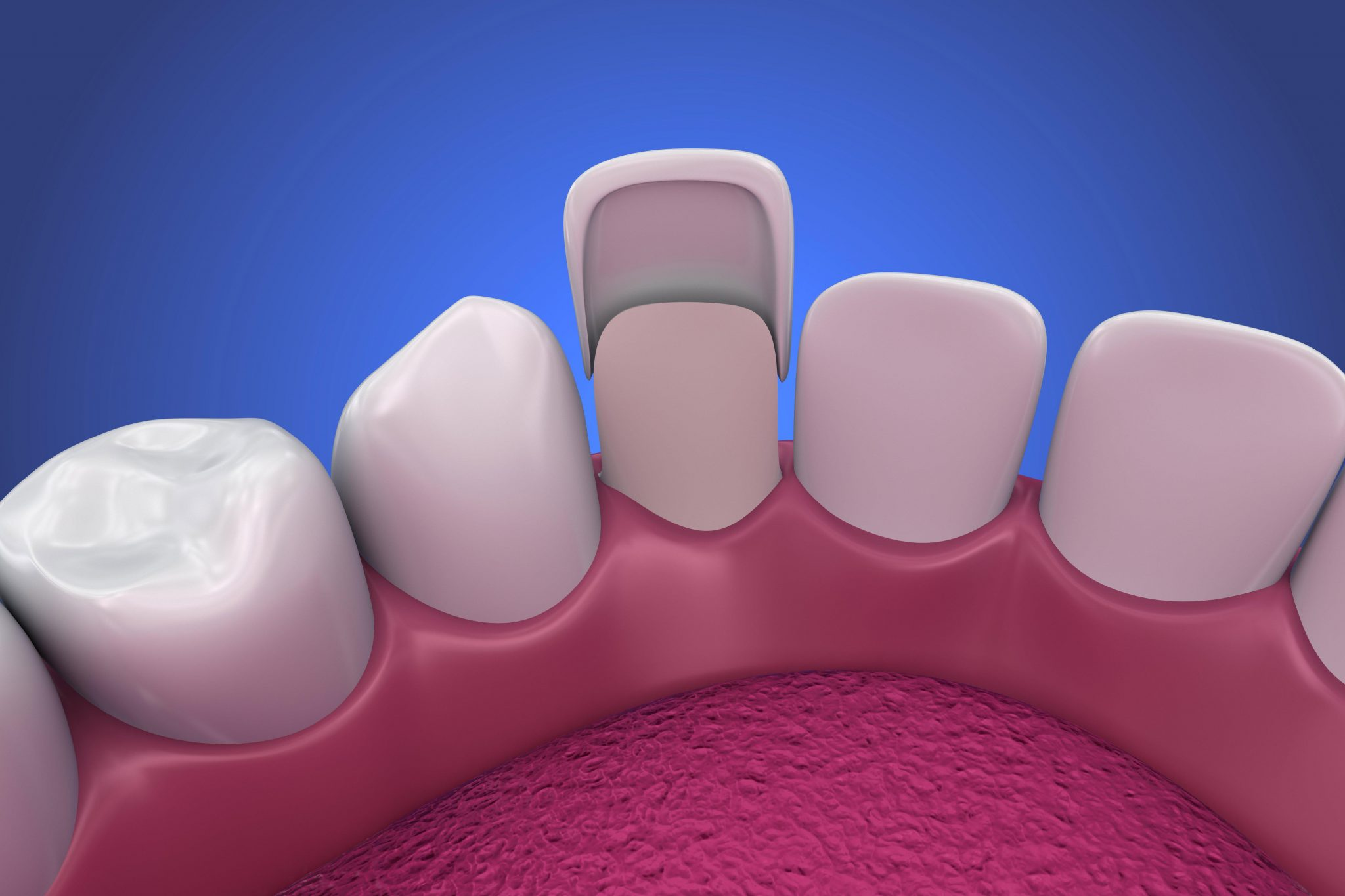 The porcelain veneer timeline: cosmetic dentistry is not a new thing, veneers have been around since 1920!