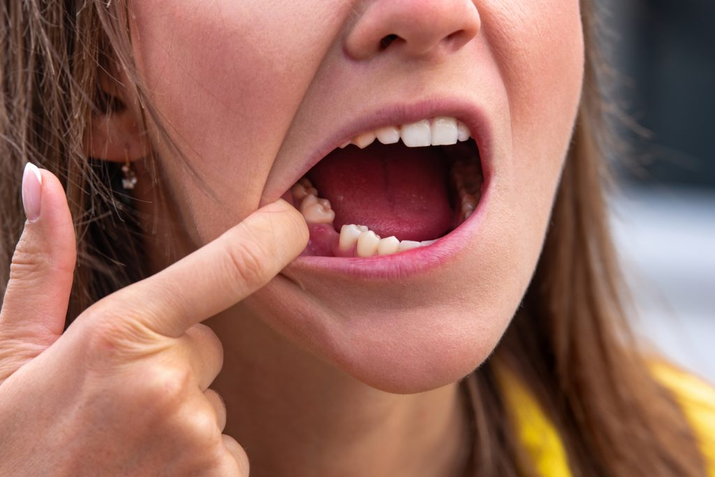 ignoring gum disease can lead to tooth loss